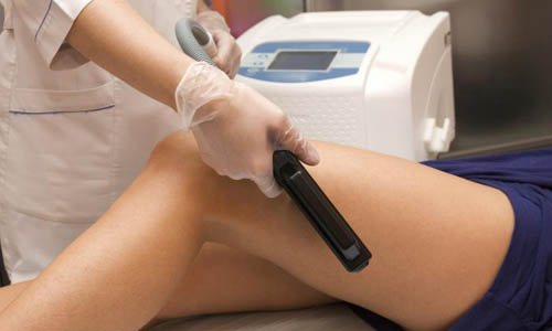 Hair Laser Removal Treatment