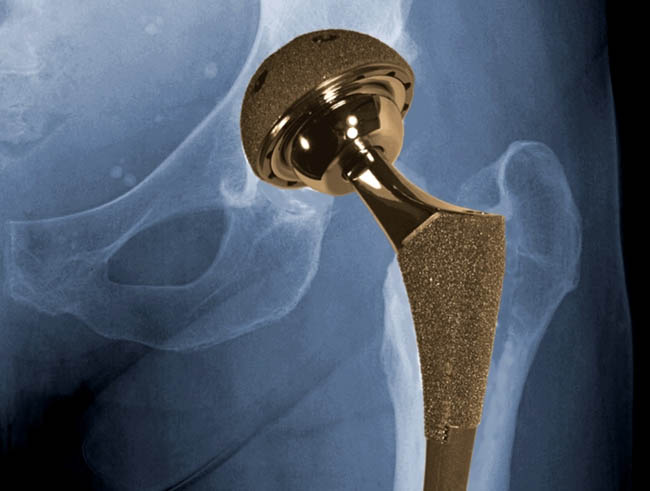 Hip Replacement Devices