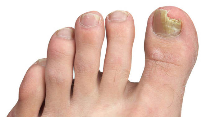 Dangers Of Oral Treatments For Toenail Fungus Icezen